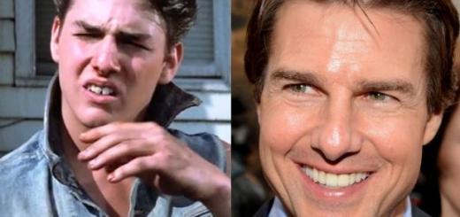 Улыбки голливудских звезд до и после дантиста: Круз, Роналду, Сайрус и другие