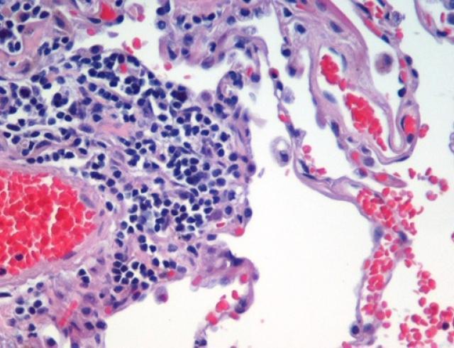 Рак: что мы знаем и как его лечить?