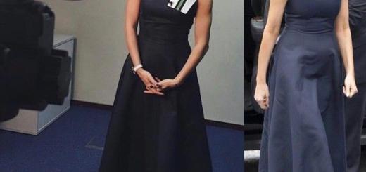 Оптом дешевле: Мадонна и Киркоров оделись одинаково