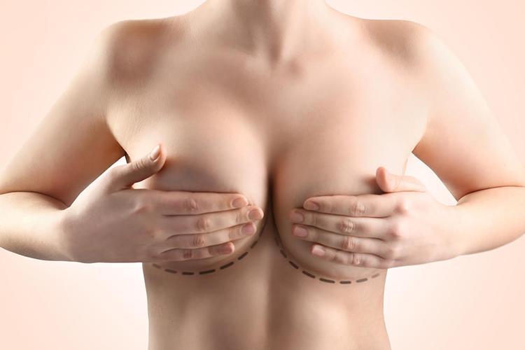Что дает маммопластика груди?