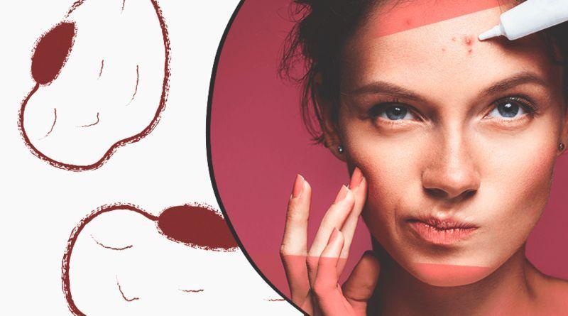 5 способов справиться с желанием трогать и ковырять свою кожу